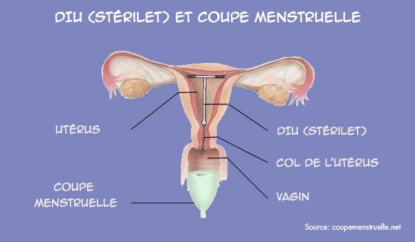 porter coupe menstruelle avec diu stérilet