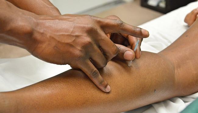 acupuncture remède naturel